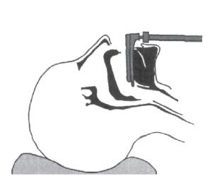 illustration step 1 inserting a straight blade