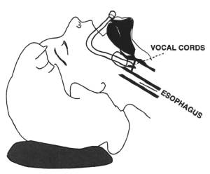 Illustration showing an endotracheal tube cuff above the vocal cords.