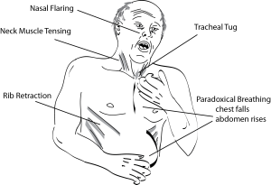 Signs of airway obstruction
