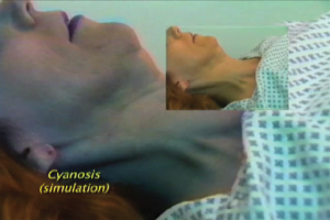 Photo of tensing of accessory muscles of respiration and simulated cyanosis as a sign of airway obstruction