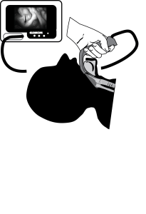 Illustration of the Glidescope Video Laryngoscope