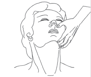 The first step to a good mask seal is opening the airway.