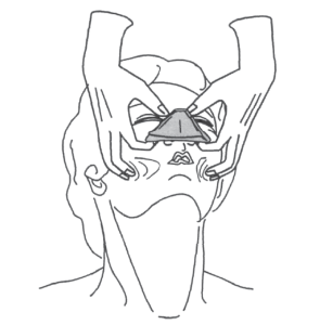 Pull the face into the mask, using the cheek tissue on either side to help make the seal.