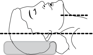 """When using a foam """"donut"""" or a Shea foam headrest, the head often sits low in the central hole. It can deceive you into thinking that the head is in the sniffing position when it isn't. (From Anyone Can Intubate, 5th Ed.)"""
