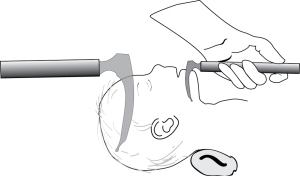 Intubation blades come in different sizes and you should choose the optimal size if you can.