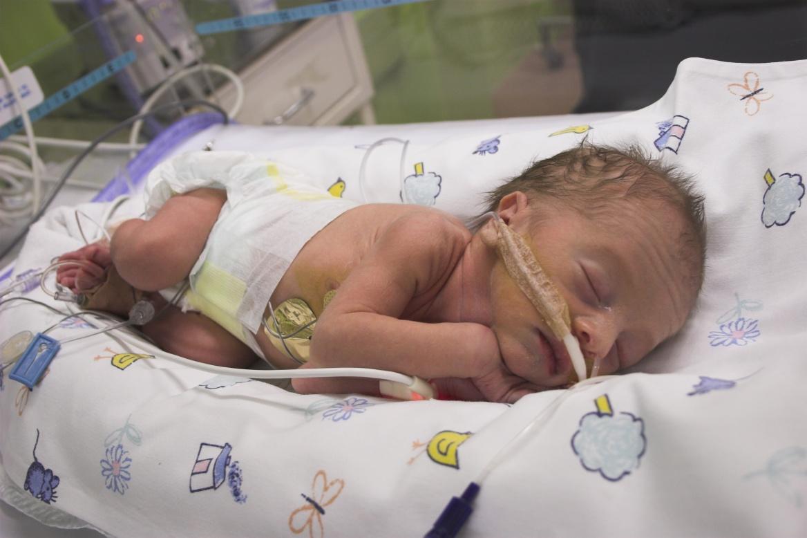 Дети родившиеся в 7 месяцев фото