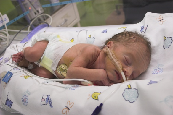 Premature baby boy in intensive care, one day old but with a gestational age about 31 weeks.