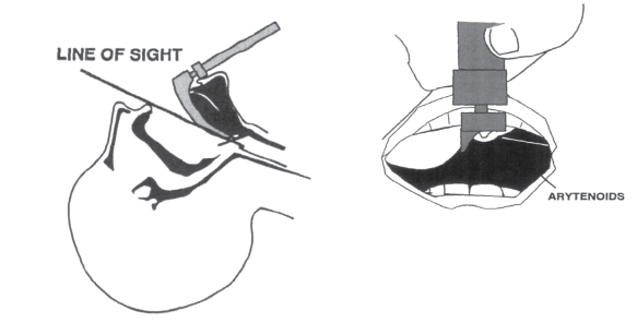 Overextension of the head and neck can make even the normal the larynx appear very anterior during laryngoscopy.