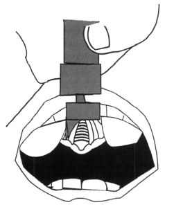 A blade placed in the middle of the tongue will cause the tongue tissue to mound on either side, block both insertion of the blade as well as your tube.