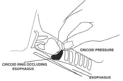 To apply cricoid pressure your helper presses the cricoid ring firmly down against the esophagus, bringing the larynx into view.