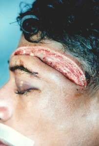 8 inch machete wound which penetrated the patient's forehead at several spots.