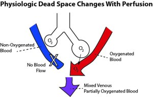 In physiologic dead space, alveoli are ventilated but not perfused. Physiologic dead space can change as lung perfusion changes.