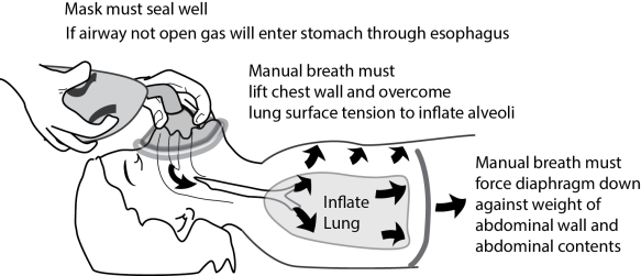 With manual ventilation, your delivered breath must address lung compliance and overcome the weight of the abdominal contents against the diaphragm and the weight of the chest wall.