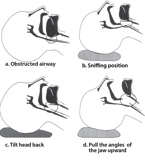 A common cause of airway obstruction is the collapse of tongue and soft tissue at the back of the throat over the larynx. Tilting the head and pulling the jaw upward lifts this tissue off the larynx and opens the airway.